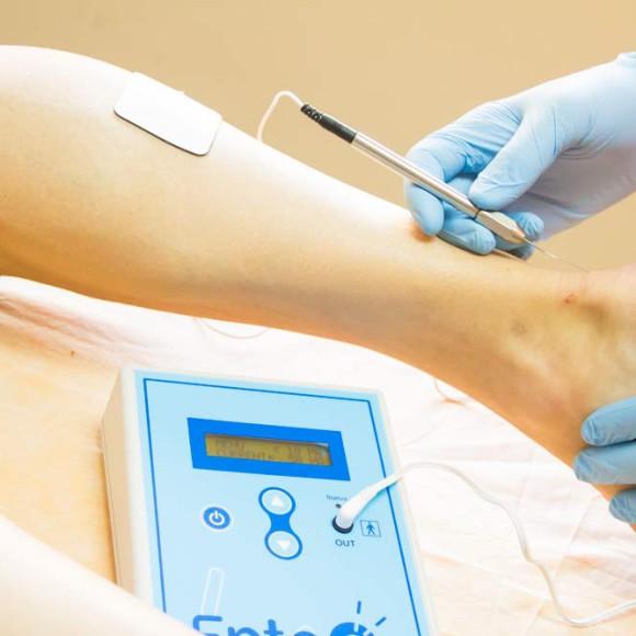 ¿Qué es la electrolisis percutánea intratisular y para qué sirve?